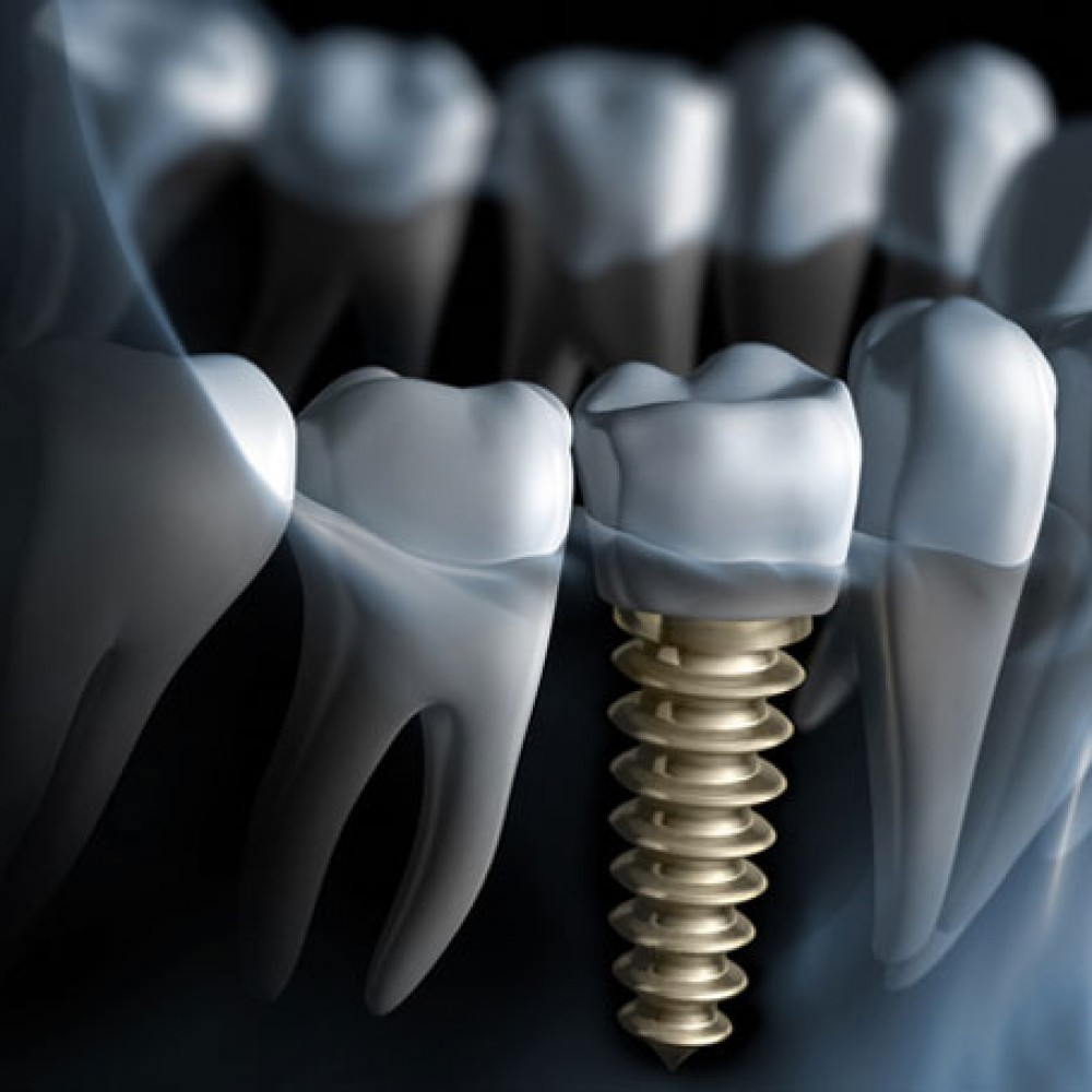 dental-implant-4