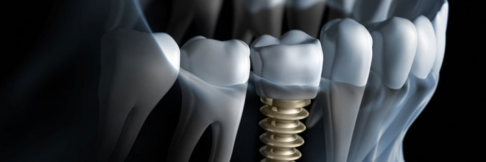dental-implant-4
